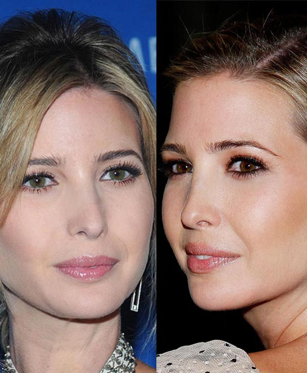 Ivanka Trump Nose Job