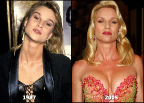 Nicollette Sheridan Breast Implants