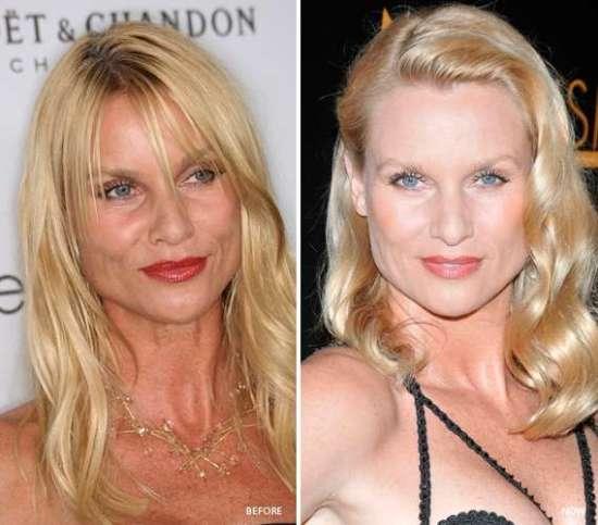 Nicollette Sheridan Plastic Surgery